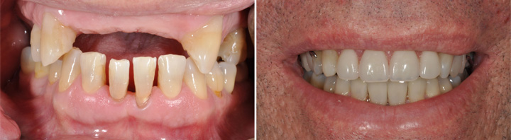 Before and After   Partial Dentures and Crowns