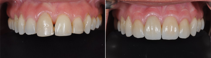 Before and After   All Ceramic Crowns and Veneers