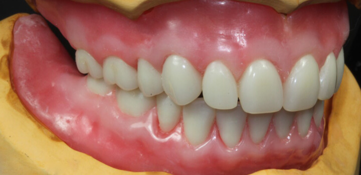 Looking for bottom dentures that do not move? Here are your options