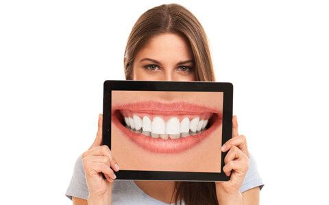 Smile Makeover | Georgia Prosthodontics Smile Specialists