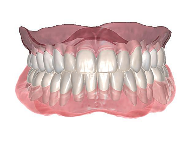 Digital Dentures Vs Conventional Dentures | Georgia