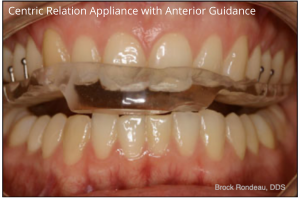 Centric Relation Appliance with Anterior Guidance