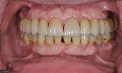 Full Mouth Reconstruction Dr Castro