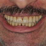 Full Mouth Reconstruction | Final Reconstruction