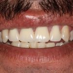 Before and After | Partial Dentures
